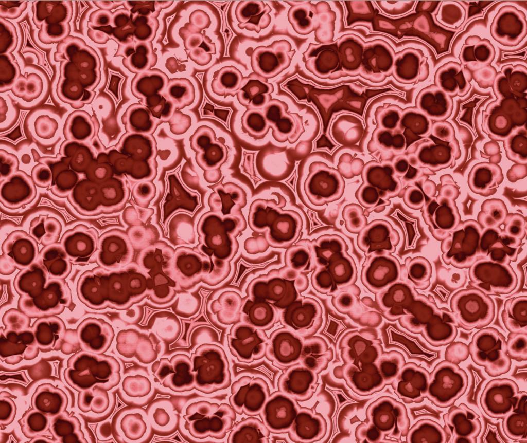 cocci bacteria